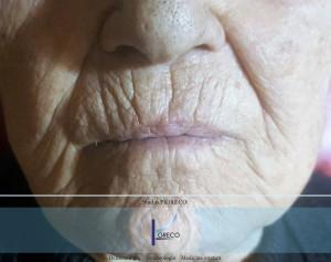 La pelle di una paziente prima del trattamento.
