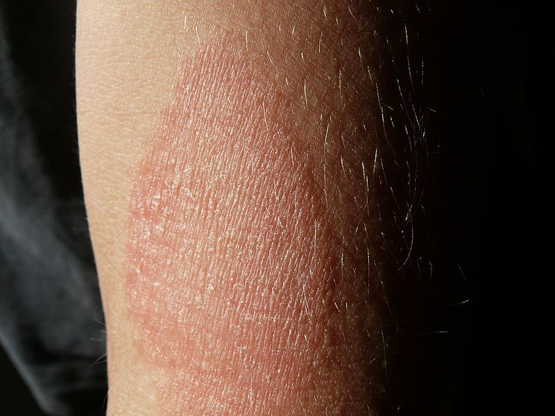 Dermatite-RivistaDonna.com